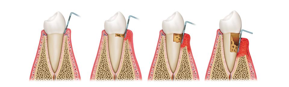 periodonciaeimplantes