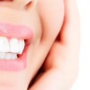 El blanqueamiento dental: ¡sí funciona!